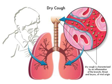 Home Remedy For Dry Cough And Tight Chest